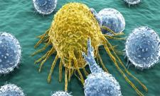 نابودی سلول های سرطانی با این دو خوراکی