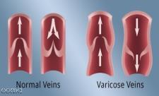 7 اقدام اساسی در درمان واریس پا حاملگی
