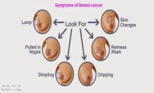 روش معاینه سینه زنان