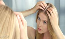 علت و درمان ریزش مو بعد از زایمان
