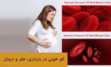 کم خونی در بارداری، علائم، دلایل و درمان
