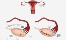 آیا کیست تخمدان مانع بارداری می شود؟