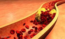 علائم گرفتگی رگهای قلبی