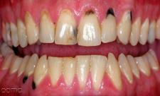لکه های سیاه روی دندان