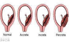 انواع جفت در بارداری