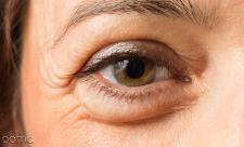 پف زیر چشم، علت و درمان های خانگی آن