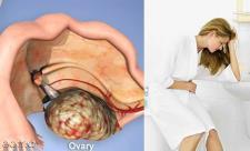 سرطان تخمدان   علت، علائم و درمان سرطان