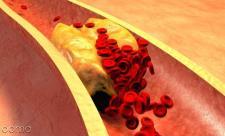 چربی خون نرمال چند است؟