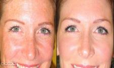 18 ماسک برای از بین بردن لک صورت