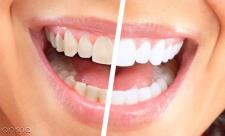 سفید کردن دندان با 4 فیلم آموزشی