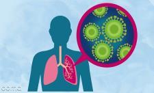 درمان عفونت ریه در افراد مسن