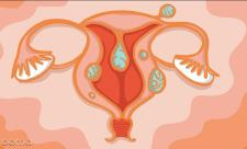 فیبروم در بارداری چقدر خطرناک است؟