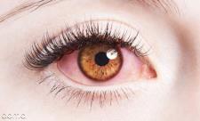 10 علت قرمزی چشم و درمان فوری آن
