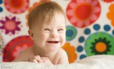 تشخیص سندرم داون در نوزاد