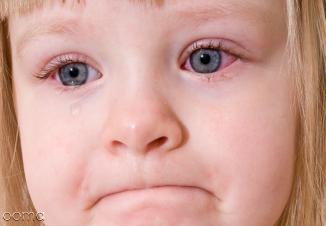 علت و درمان عفونت چشم کودکان