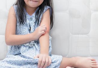 دانه های قرمز روی پوست کودک همراه خارش
