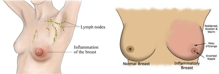 اولین مرحله از معاینه سینه