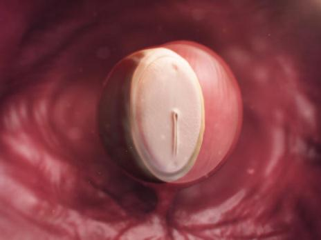 عکس جنین در هفته 4بارداری
