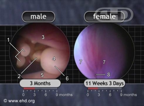 شکل جنین در سه ماهگی
