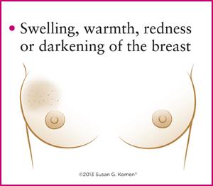 قرمزی و داغی سینه در سرطان سینه