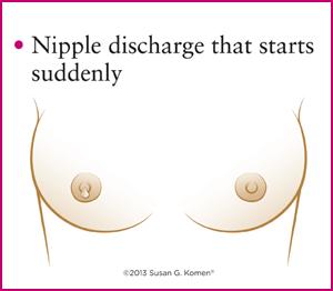 ترشحات نوک سینه در سرطان سینه