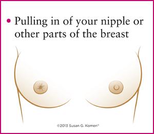 فرو رفتگی نوک سینه در سرطان سینه