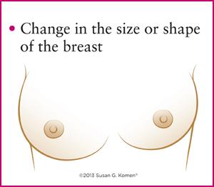 تغییرات اندازه سینه در سرطان سینه