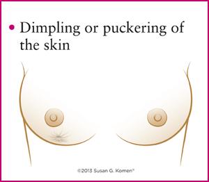 پوست پرتقالی شدن در سرطان سینه