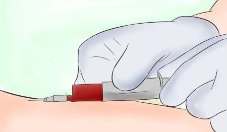آزمایشات قبل از بارداری
