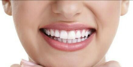 درمان لکه های سیاه روی دندان