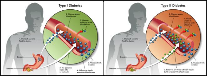 عامل ایجاد دیابت نوع 1 و 2