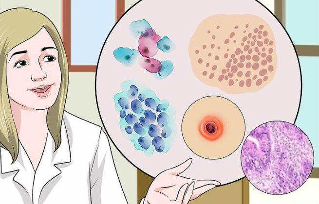 احتمال سرطان رحم در پاپ اسمير