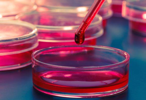 خونگیری آزمایش پرولاکتین