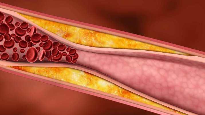 چه چیزی باعث فشار خون میشود؟