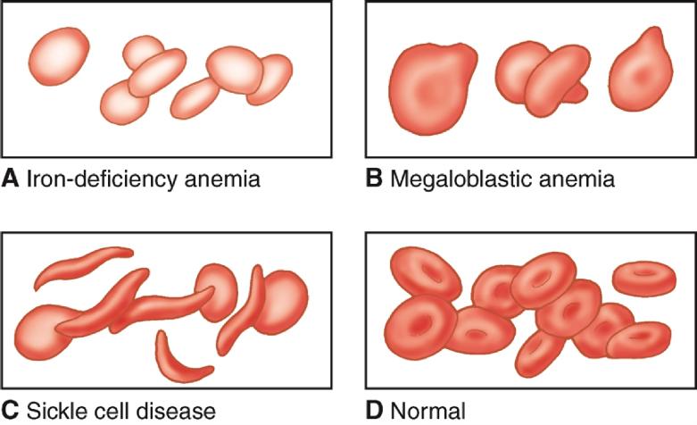 انواع کم خونی