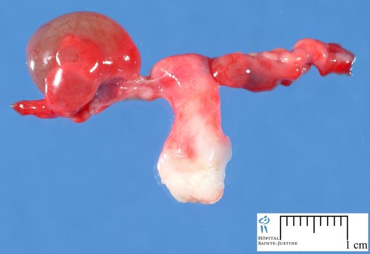 تشخیص خطرناک بودن کیست تخمدان