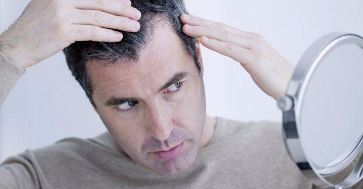 برای ریزش مو مردان چه باید کرد
