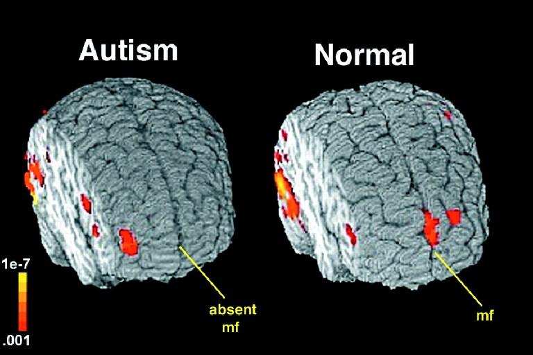 عکس بیماری اوتیسم