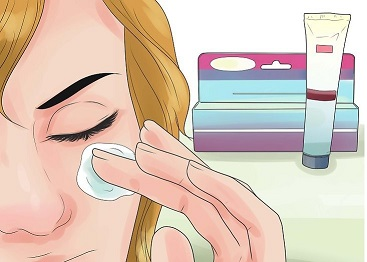 پراکسید بنزوئیل و بهبود جوش های صورت