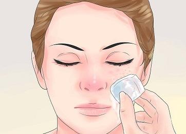 ادامه روند درمان جوش های صورت