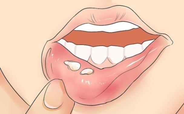مراجعه به دکتر برای آفت دهان