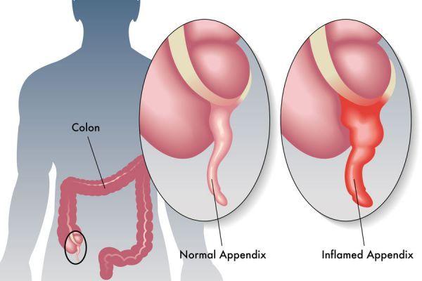 علائم بیماری آپاندیس