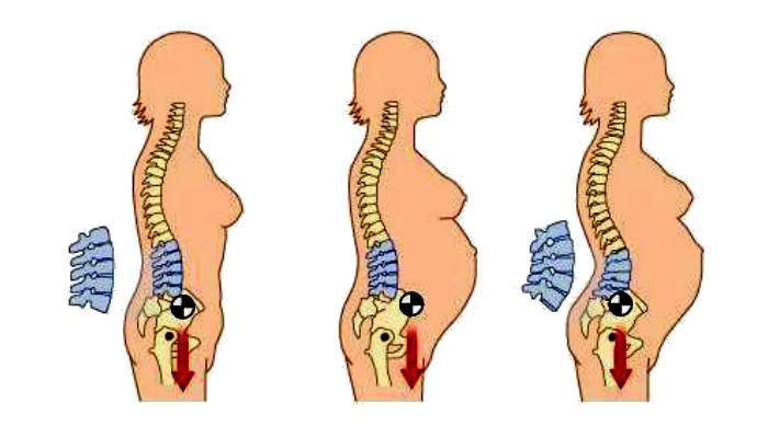 علت کمر درد در بارداری