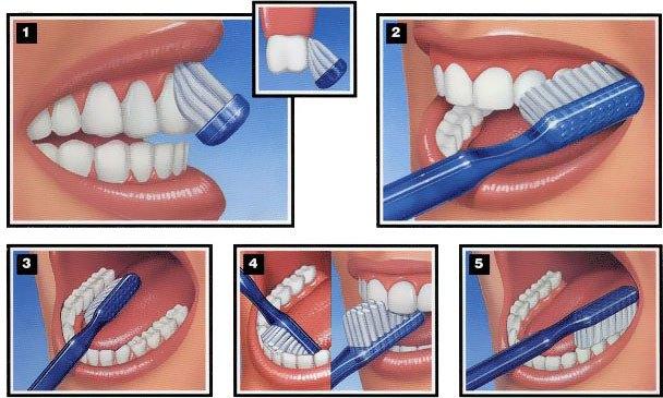 جلوگیری از دندان درد