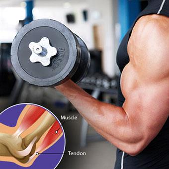 عضلات صاف چیست؟