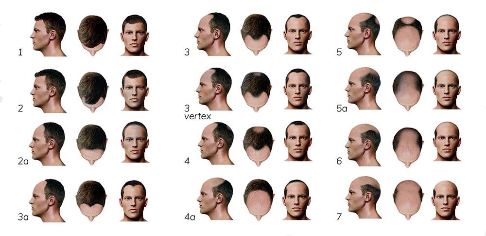 الگوی ریزش مو در مردان