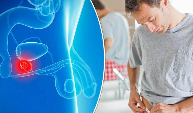 سرطان پروستات چگونه شروع میشود