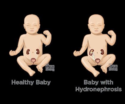 معیار تشخیصی ورم کلیه جنین