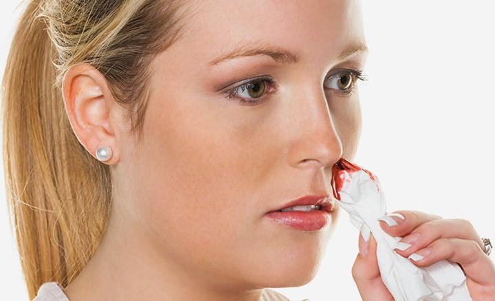 درمان خانگی خون دماغ شدن