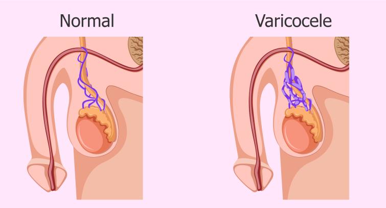 درمان واریکوسل